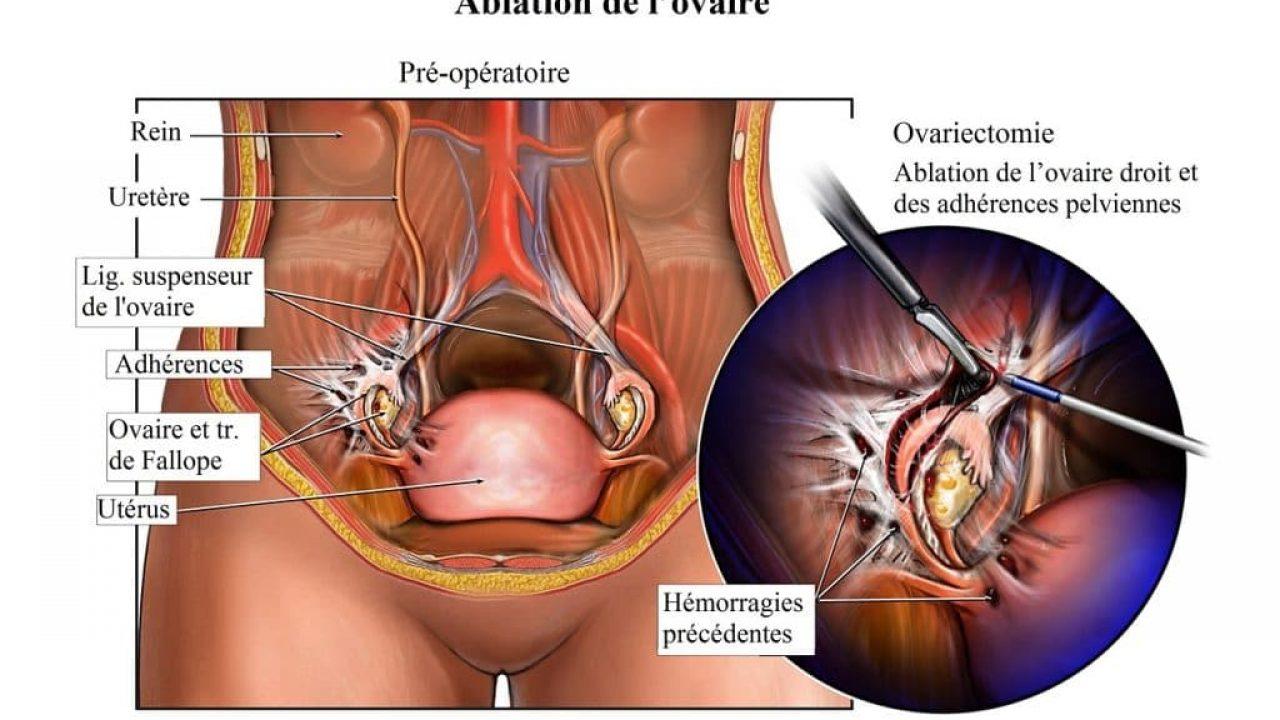 Douleur aux ovaires après les règles: que faut-il faire ...