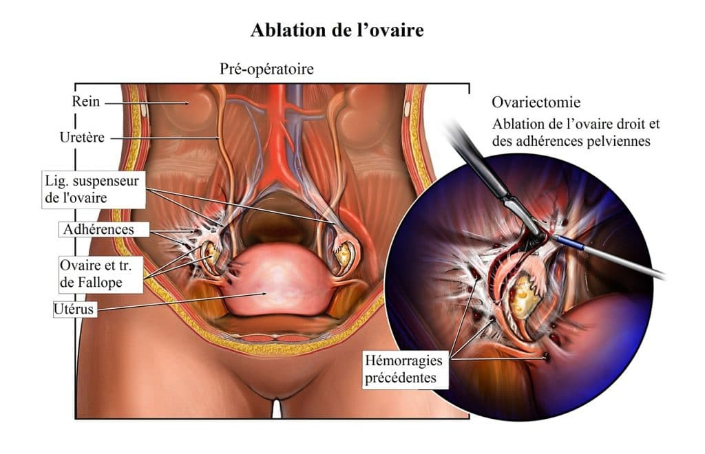 douleur au niveau des ovaires